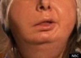 today show august 11 2011 face transplant size14.3KB